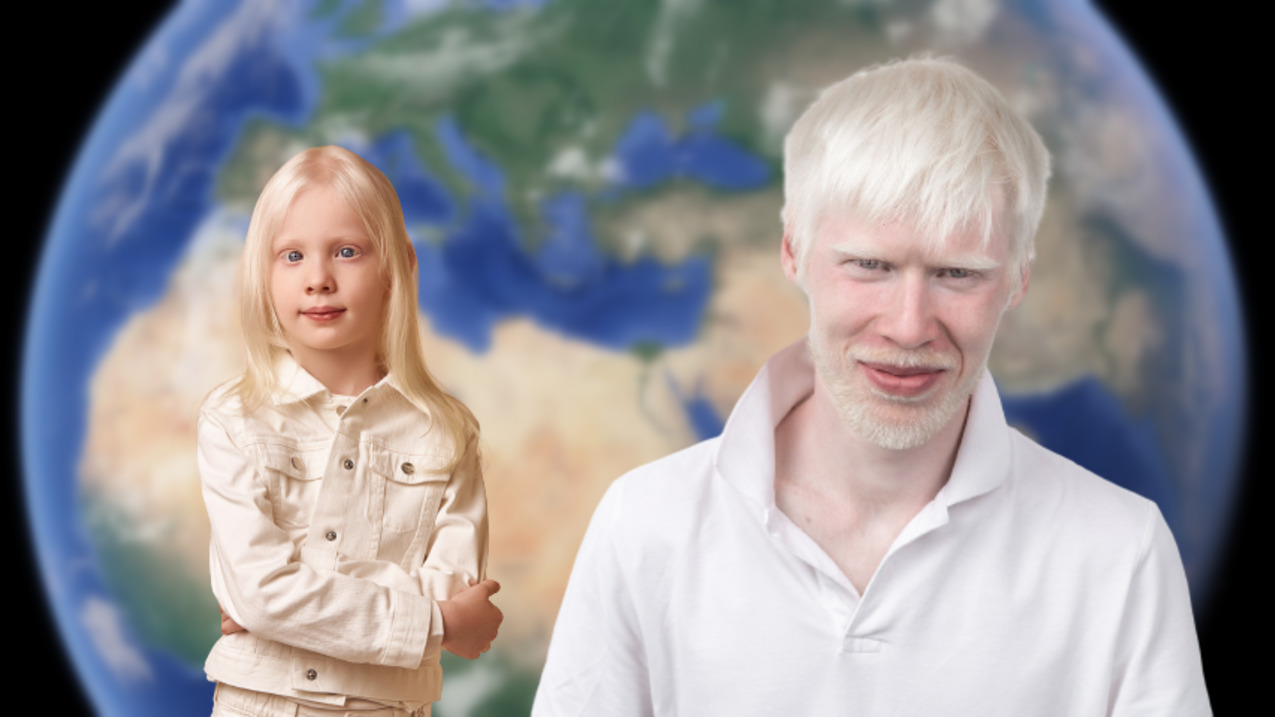 Persons With Albinism in the MENA Region Fight for Their Rights